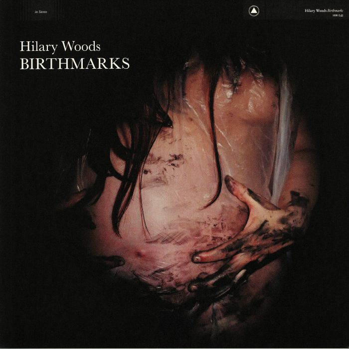Hilary Woods Birthmarks